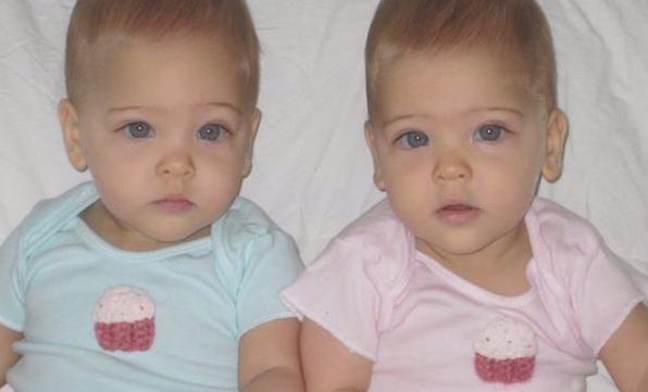 Dünyanın En Güzel İkizleri Denilen Kızlara Birde Şimdi Bakın
