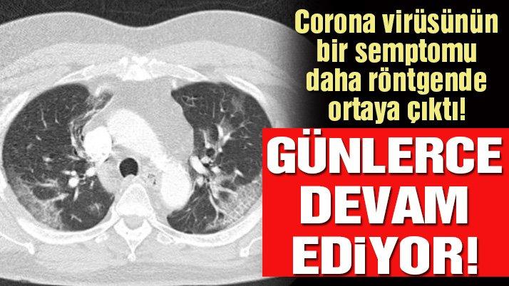Corona virüsünde yeni semptom ortaya çıktı: Etkisi tam 4 gün sürüyor