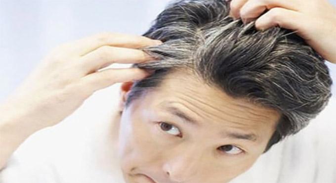 Saçınızın Erken Beyazlama Sebebi Buymuş