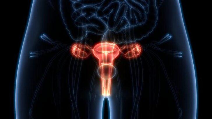 Her Kadının Mutlaka Bilmesi Gereken Yumurtalık Kanserinin En Erken Belirtileri