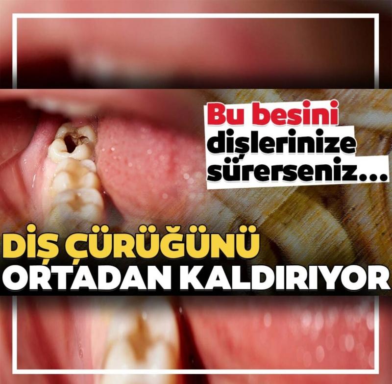 Çürük dişler için doğal çözüm! Bu besin çürük diş sorununu ortadan kaldırıyor