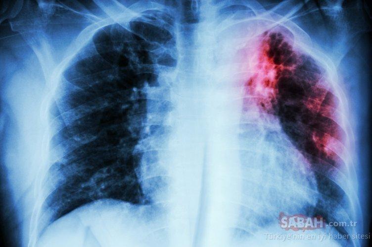Akciğer kanseri belirtileri nelerdir! İşte Akciğer kanserinin belirtileri?