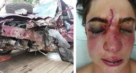 Araba Kullanırken Yaptığı Bu Hata Hayatına Mal Oluyordu, Genç Kızın Annesi Herkesi Bu Konuda Uyarıyor