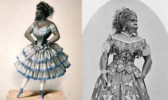 Julia Pastrana Hypertrichosis denilen genetik bozukluğa sahip bu kadının vücudu aşırı uzun siyah kıllarla kaplıdır.