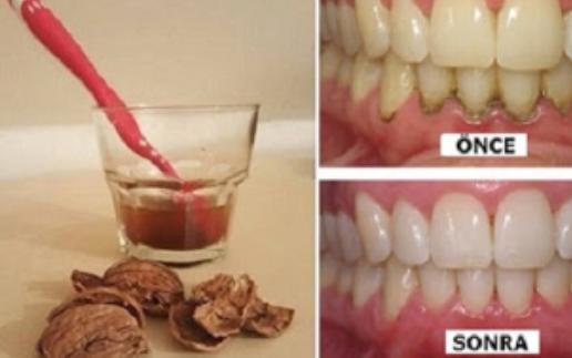 Sadece 1 Malzeme Sayesinde Işık Işıl Dişler! ( Tartar, enfeksiyonlar, iltihaplı diş hastalıkları...)