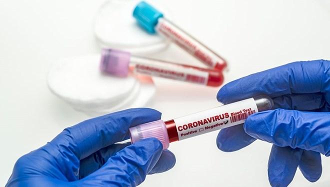 Koronavirüs Tablosu Paylaşıldı: Tablo Vahim