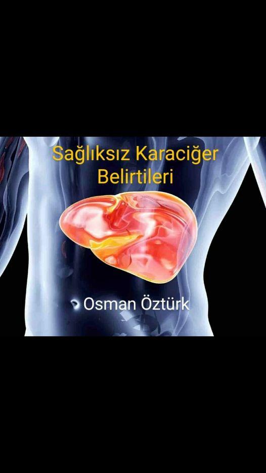 Zayıf karaciğere sahip olduğumuzu tespit etmenin kolay yolları.