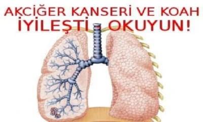 78 Yaşında Akciğer Kanseri, KOAH, Psikolojik Bozukluk ,  Mantar Ve Bel Fıtığı Bu sayede Yendi