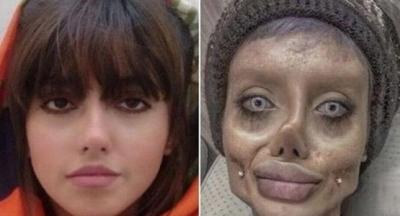 Angelina Jolie'ye Benzemek İsterken Zombiye Dönüşen Ve Bu Yüzden Tutuklanan İran'lı Kadın, Acı Bir İtirafta Bulundu