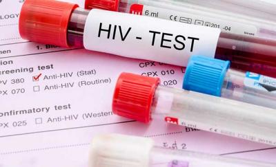 'HIV'de en çok artış olan ülke Türkiye'