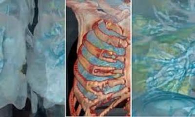 İşte Koronavirüsü ciğerlere bunu yapıyor. 3D görüntüsü