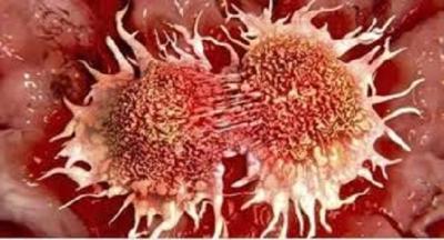 Önemli! Mutlaka Okumalısınız. Kanser hiç yoktan artmadı !