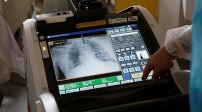 Sağlık Bakanlığı Güncel Verileri Paylaştı: Vaka Sayısında Yeniden Korkutan Artış
