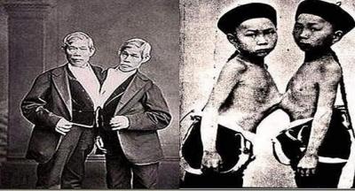 Tarihin En Ünlü Siyam İkizleri Chang ve Eng Bunker Kardeşlerin Tuhaf Hikayesi