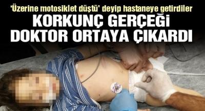 Üzerine Motor Düştü Denilip Hastaneye Kaldırılan 3 Yaşındaki Çocukla İlgili Gerçek, Kan Dondurdu