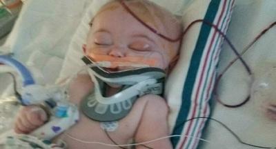 Yataktan Düşen Bebek Bu Hale Geldi, Anne Şimdi Tüm Ebeveynleri Uyarıyor