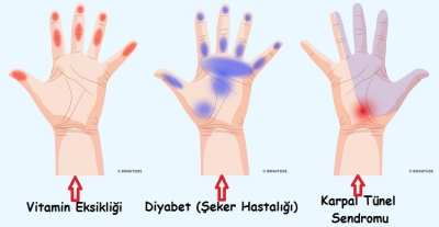 Ellerimiz Sağlığımız Hakkında Ne Diyor?