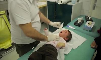 Fransız Bir Doktordan İlginç Bronş Temizleme Yöntemi: Mutlaka İzlemelisiniz